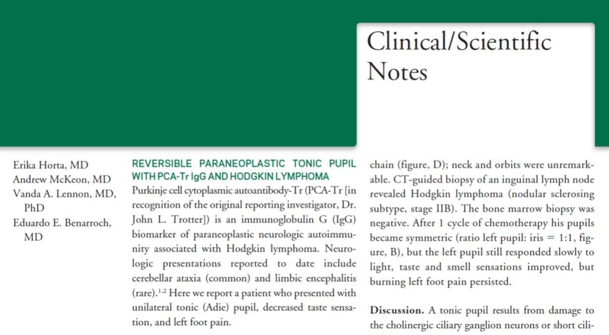 Pupilla tonica de adie pdf file
